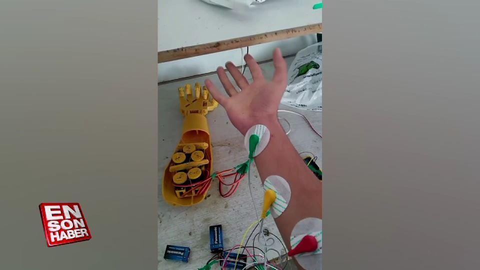 Kayserili lise öğrencileri protez kol üretti