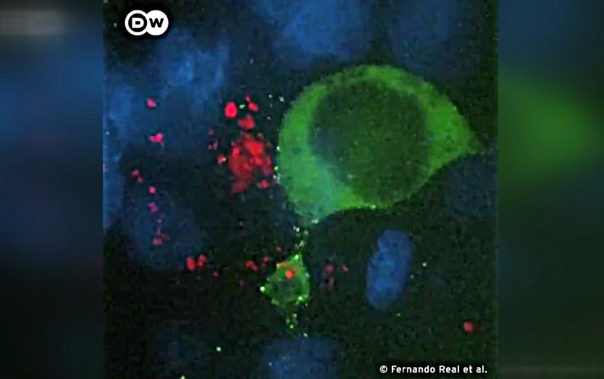 Hiv virüsünün hücreye bulaştığı an