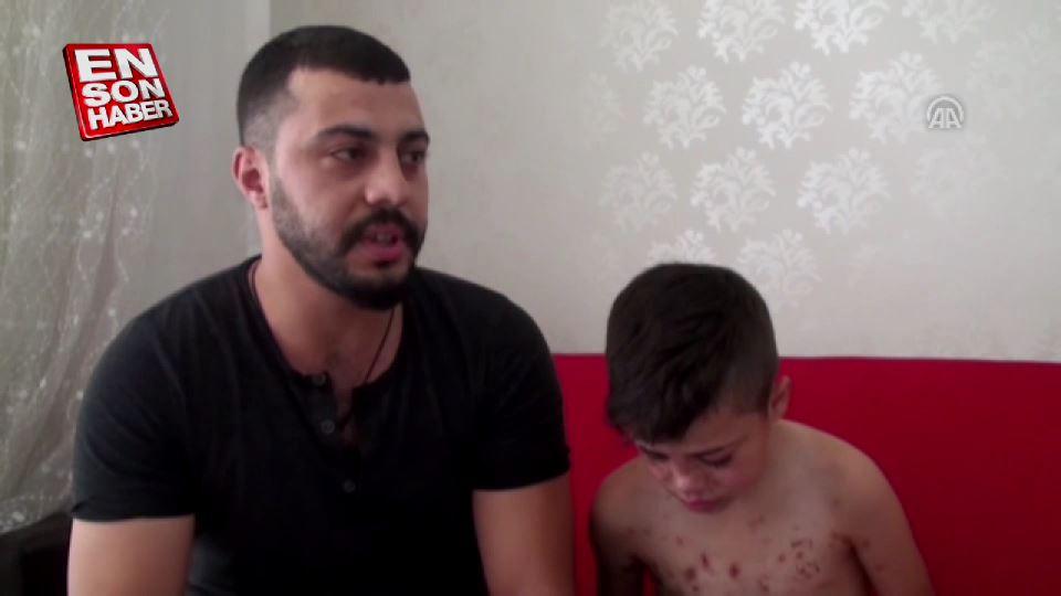 Suriyeli Abdülmuin'e Türkiye'den şefkat eli